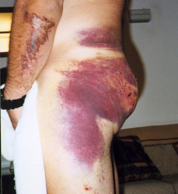 Bruised Butt 93